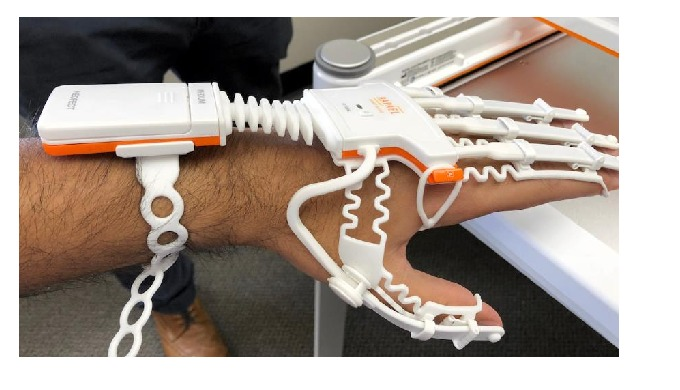 Rapael Smart Glove to help patients rehab at home